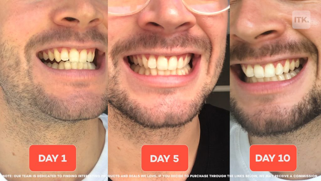 We Tried Colgate S Latest Teeth Whitening Device That Claims To